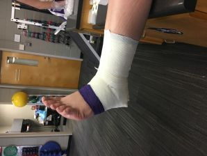 Taping an Ankle
